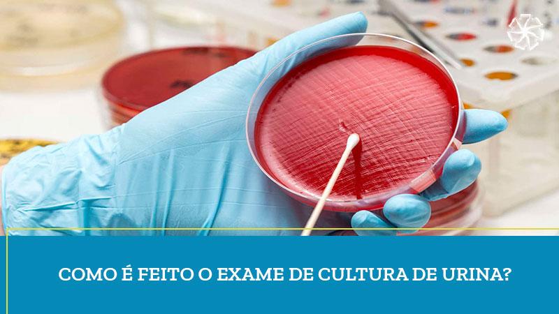 Como é feito o exame de cultura de urina